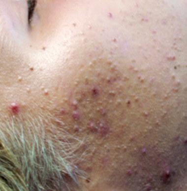 bdr aknebehandlung vor - bdr Hautbehandlung