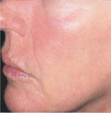bdr antiaging nach - bdr Hautbehandlung