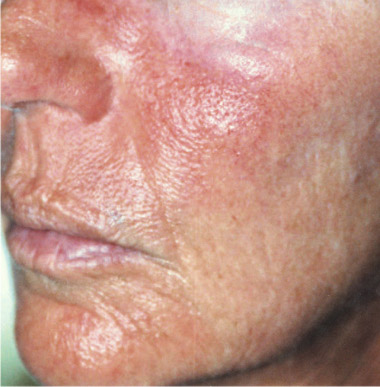 bdr antiaging vor - bdr Hautbehandlung
