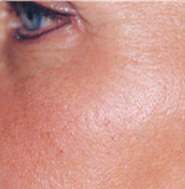 bdr faltenreduzierung nach - bdr Hautbehandlung