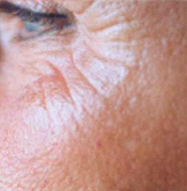 bdr faltenreduzierung vor - bdr Hautbehandlung