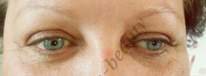 permanent makeup vor - Permanent Make-up